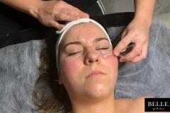 Belle-spa-clinc_lifting-twarzy-krysztalami