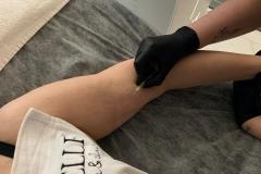 Belle-spa-clinic_karboksyterapia-obwisła-skóra-ramion