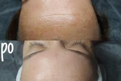 Belle-spa-clinic_efekty-kuracji-peelingami-chemicznymi