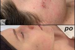 Belle-spa-clinic_peelingi-chemiczne