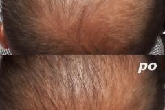 Belle-spa-clinic_trychologia-zaawansowane-łysienie