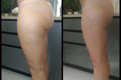 Belle-spa-clinic_karboksyterapia-winback-cellulit-tluszczyk
