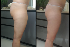 Belle-spa-clinic_karboksyterapia-winback-modelowanie-sylwetki