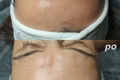 Belle-spa-clinic_winback-terapia-przeciwstarzeniowa-czoło
