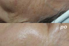 Belle-spa-clinic_winback-terapia-przeciwstarzeniowa-oczy