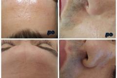 Belle Spa & Clinic - Winback beauty twarz