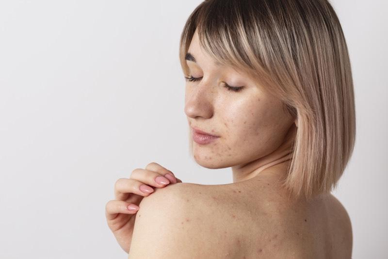 Jak leczyć trądzik