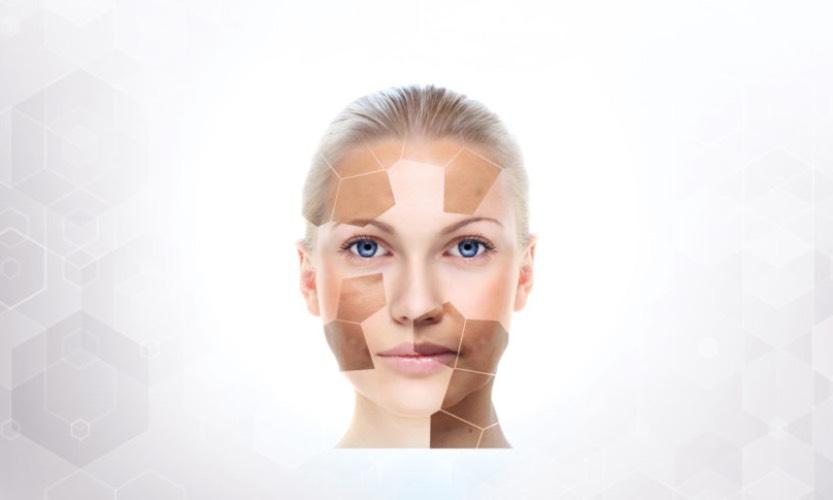 Dlaczego powinniśmy dbać o skórę